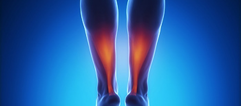 Achilles Tendon Rupture: What you need to know.