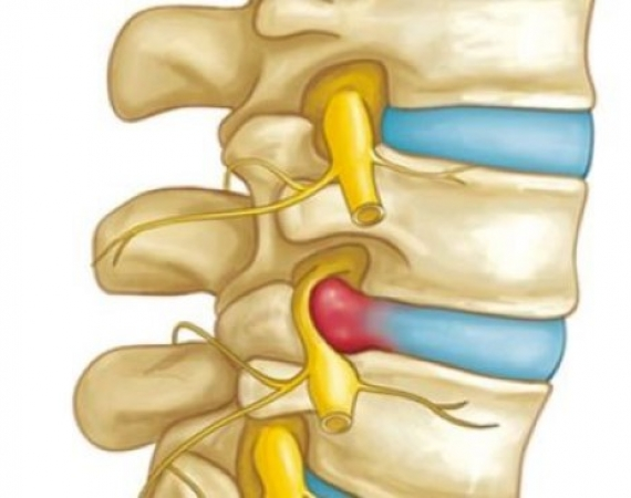 Surgery for Disc Herniation? Not so fast!
